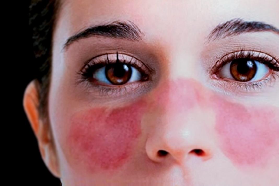 Qué es el lupus? – CPVS